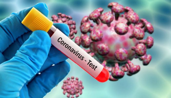 Θετικά στον SARS-CoV-2 διαγνώστηκαν 2 ακόμα άτομα στην Λευκάδα